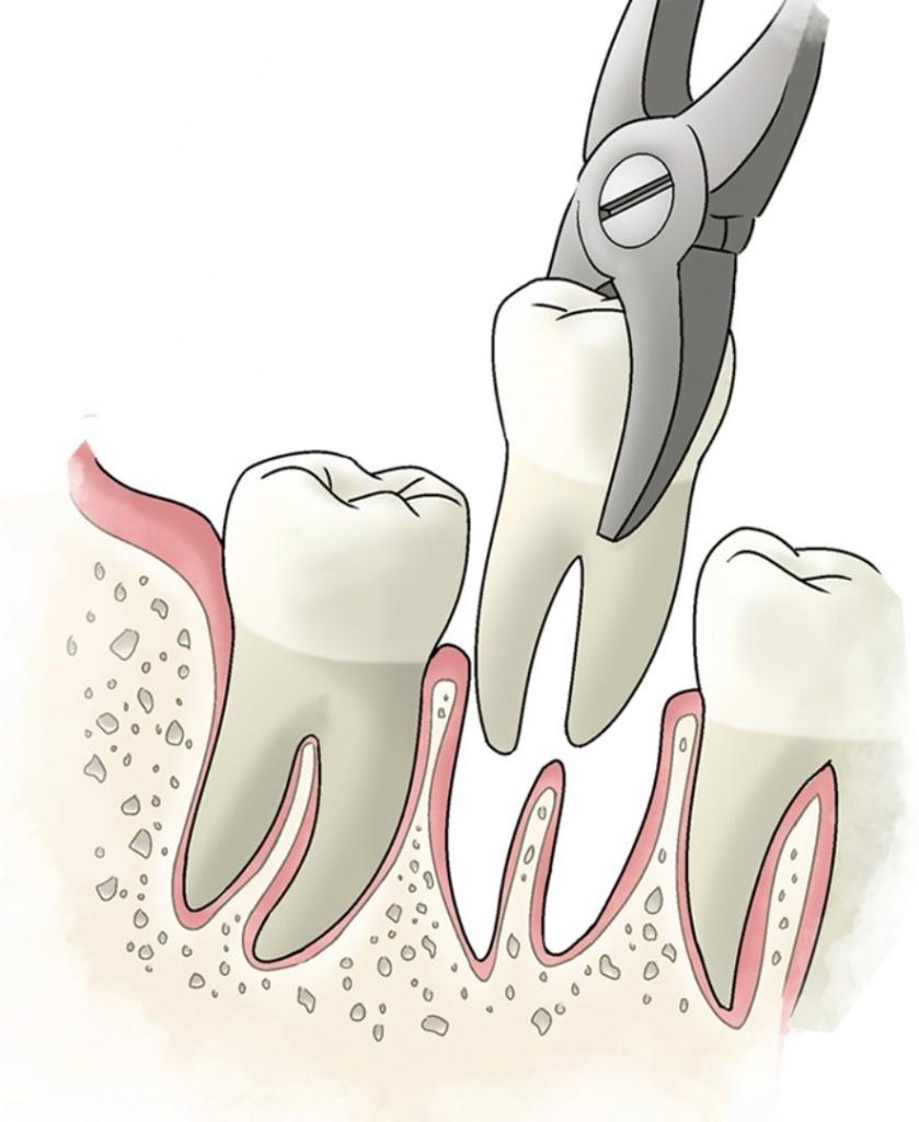 Удаление зубов